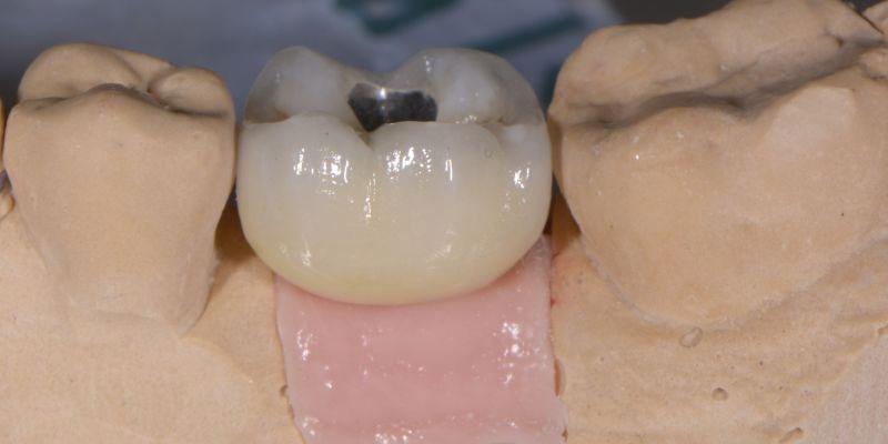 Nejlevnější zubní implantátybrno